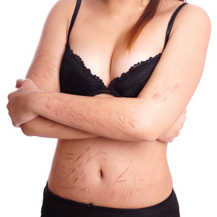 Woman with scars from self-harm | The Chelsea Psychology Clinic